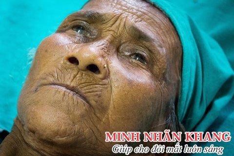 Bà Purni Maya trên bàn mổ đục thủy tinh thể